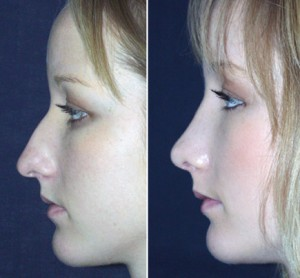 how to get a thinner nose with makeup