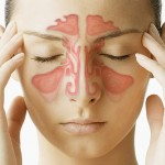 sinus remedies 150x150 How To Relieve Yourself of Sinus Pressure